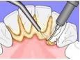 Превенция срещу образуването на зъбен камък